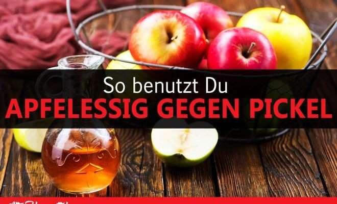 So benutzt Du Apfelessig gegen Pickel