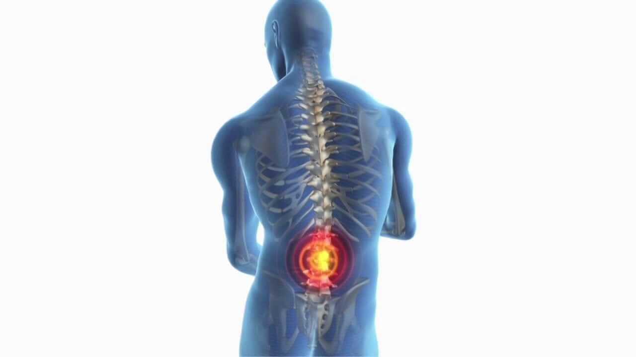 Symptome von Ischiasschmerzen