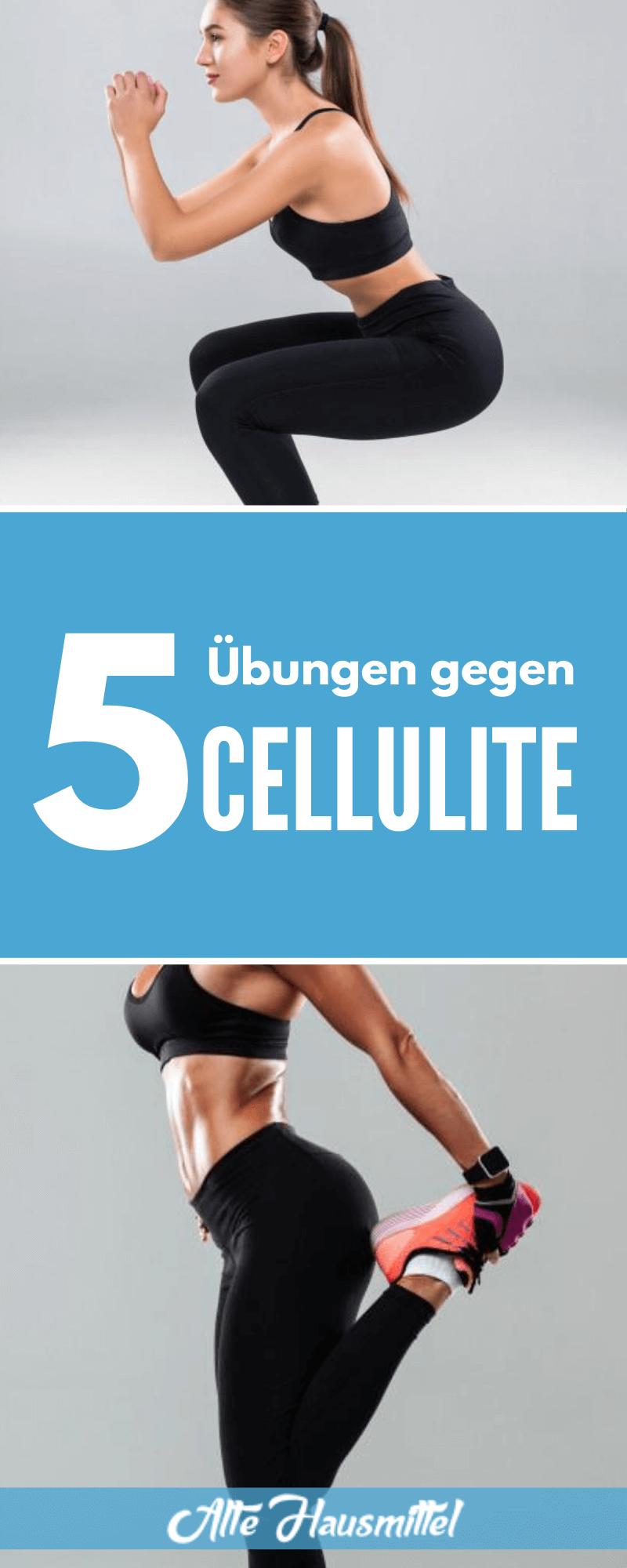 5 Übungen gegen Cellulite