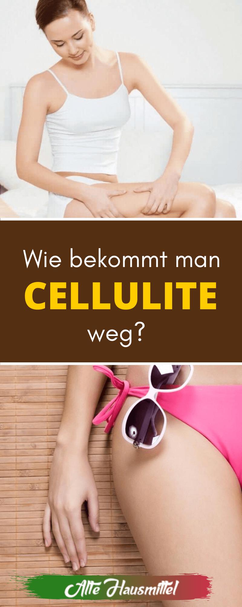 Wie bekommt man Cellulite weg?