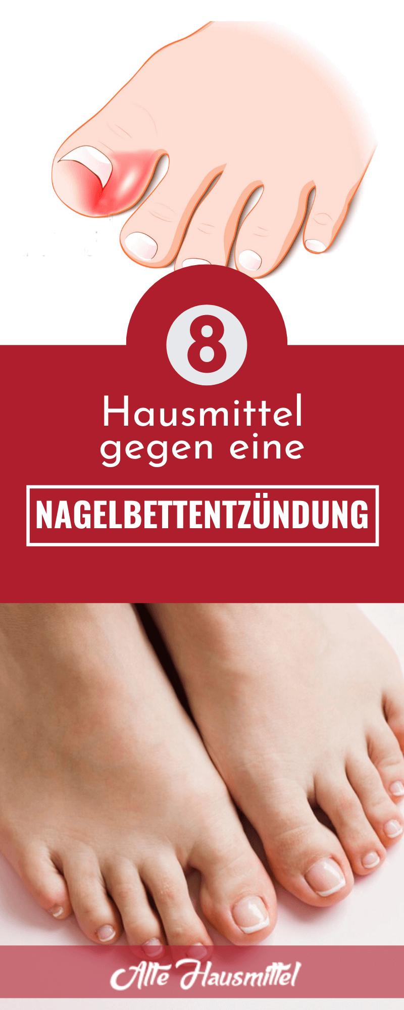 Hausmittel gegen eine Nagelbettentzündung