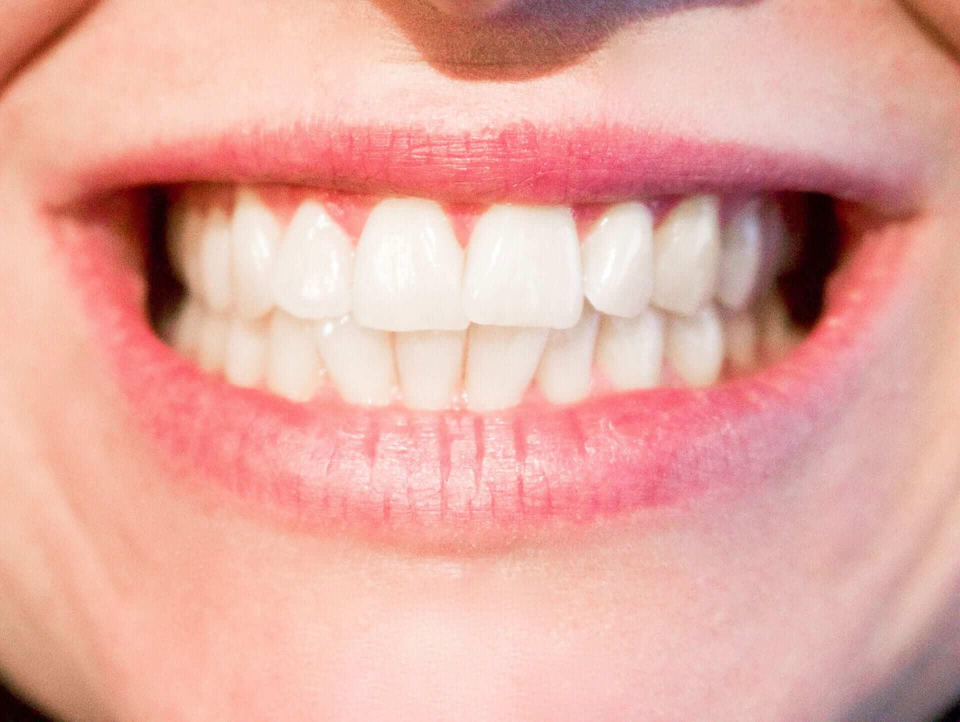 Frau zeigt ihre weißen Zähne